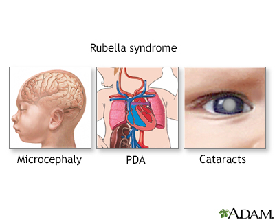 Rubella Syndrome