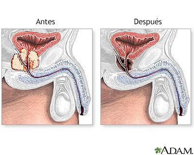 consecuencias operacion prostata