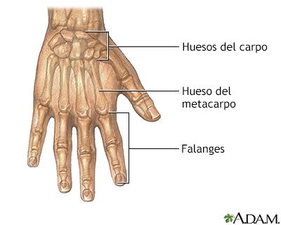 Reparación de la fusión de los dedos de las manos o de los pies