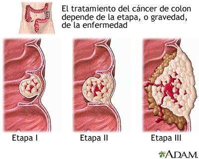 cancer de colon sintomas iniciales